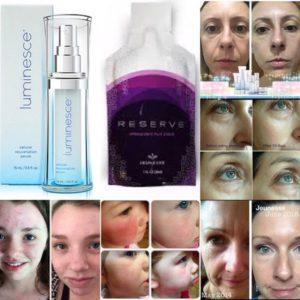 О результатах-подробнее, фото лиц людей, применение Luminessce, Reserve и других продуктов Jeunesse. Picture.