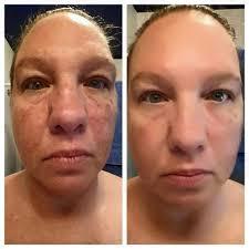 jeunesse-instantly-ageless-acne-effect, лицо женщины до и после применения крема Instantly Ageless, эффект. Picture.