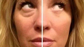 Instantly Agelesse, до (before) и после (after) применения, лицо женщины. Picture.